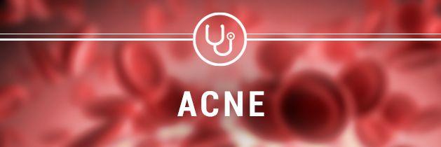 acne-header