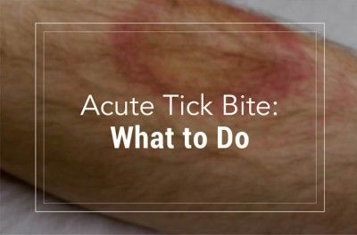 What to Do for an Acute Tick Bite