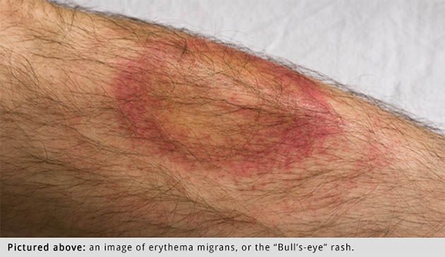 erythema migrans rash