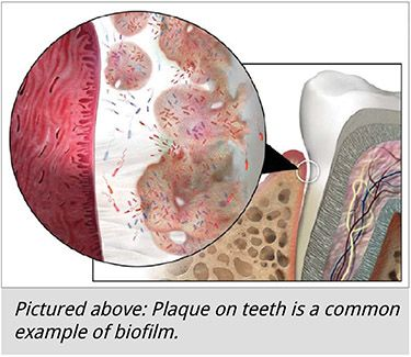 tooth plaque is an example of biofilm