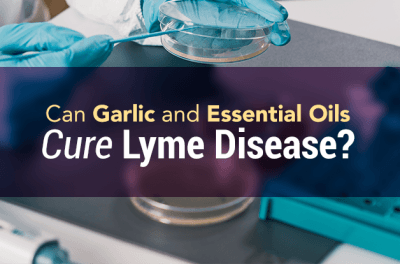Can Garlic and Essential Oils Cure Lyme Disease?