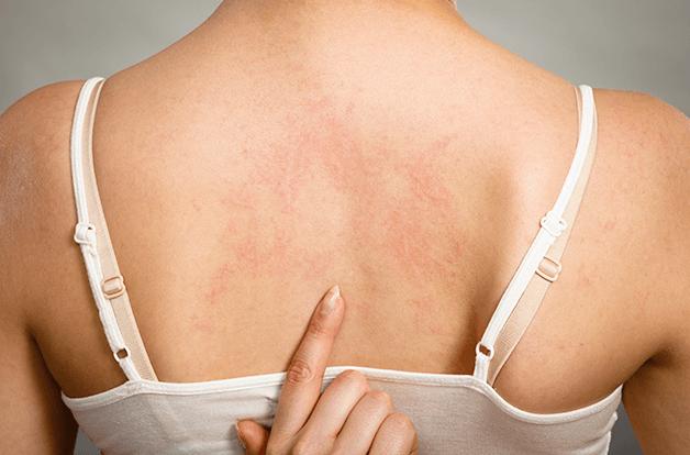 skin rash across female back from food allergy