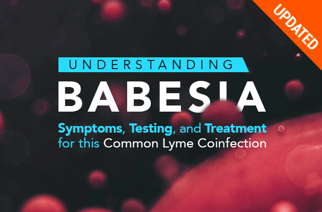 Understanding Babesia: Symptoms, Testing, and Treatment | RawlsMD
