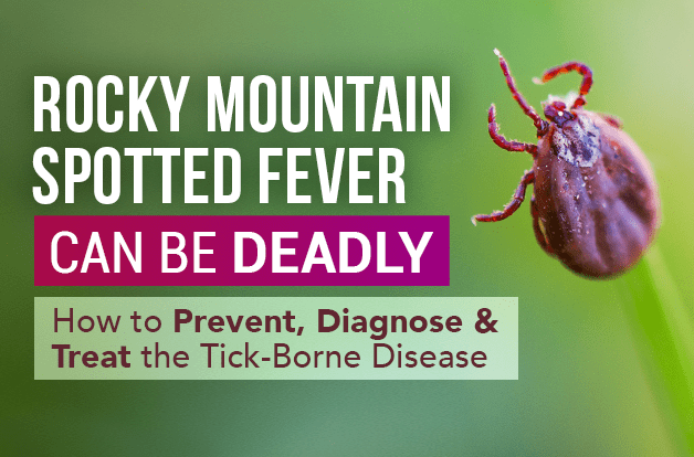 Rocky Mountain Spotted Fever Can Be Deadly: How to Prevent, Diagnose, and Treat the Tick-Borne Disease