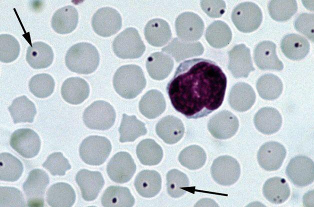 Anaplasma microbe, microscope view