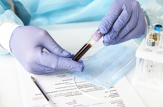 Doctor wearing gloves holds a blood test tube