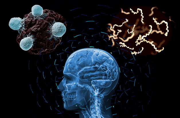 scientific image, X-ray of human skull, showing brain. surrounded by neurons, natural killer cells, and borrelia